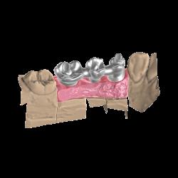 Módulo de Implantes